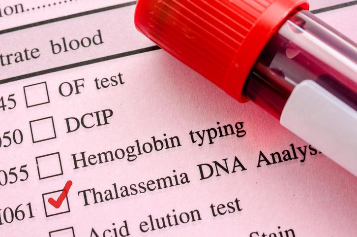Addio trasfusioni per 3 bimbi talassemici, funziona la cura genica